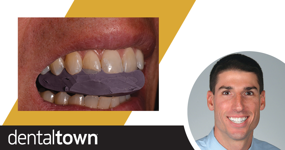 Show Your Work: In-Office Restorations Dr. Anthony Mennito discusses a recent direct Class IV restoration of an anterior tooth on a patient with high standards—a prosthodontist and fellow colleague.