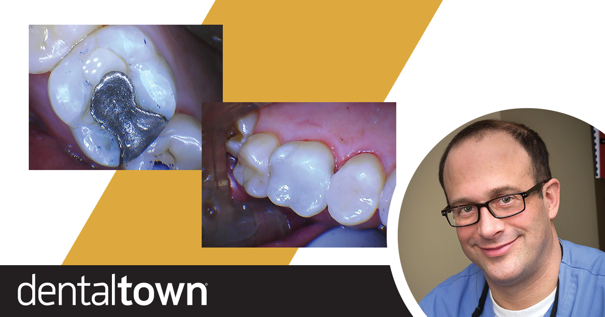 Show Your Work: Working at Light Speed Dr. Joshua Weintraub shares a case in which he used a laser to remove old amalgam and prepare teeth for restoration. The ability to forgo anesthetic and traditional instruments helped him shave a half-hour off the time required to perform the procedure.