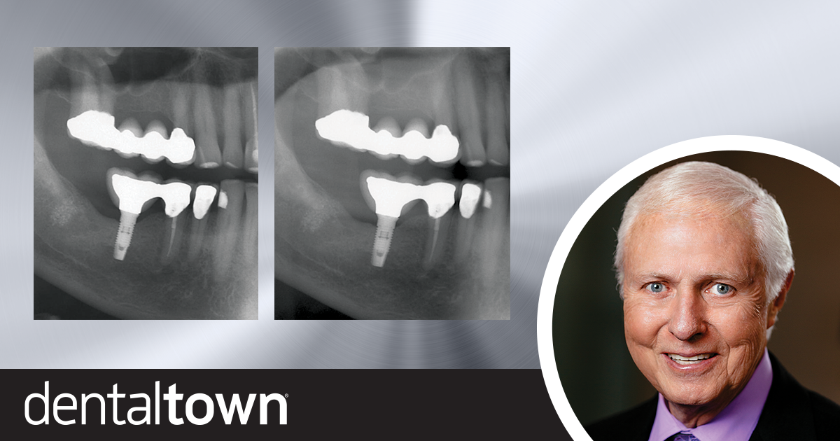 Should Implants Be Connected to Natural Teeth?   Dr. Gordon Christensen shares how, and when, to connect implants to natural teeth.