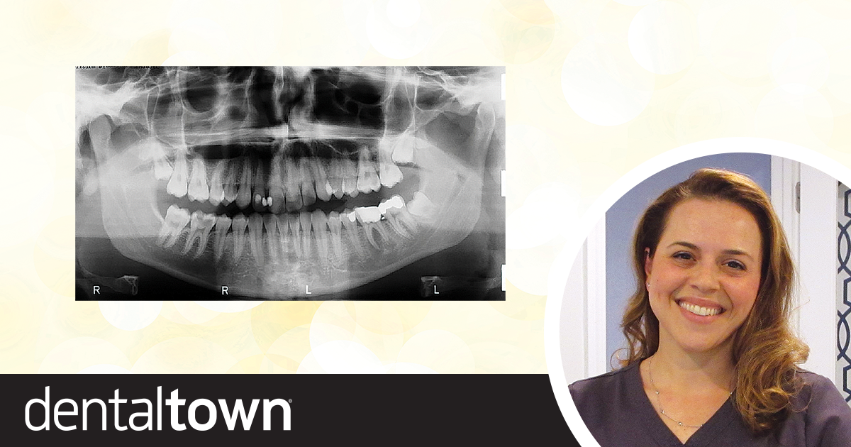 Continuing Education: Transplanting Molars Dr. Judy McIntyre discusses endodontic autotransplantation techniques—moving one tooth to another location in the mouth—and shares a case in which she moved two third molars to first-molar position?… and includes a 13-year follow-up report.