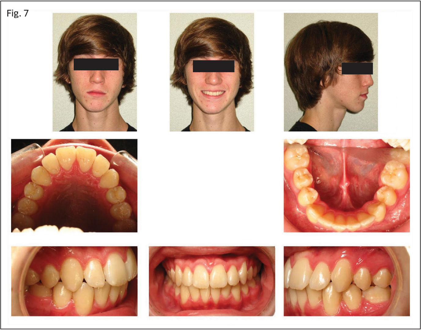 Case Presentation: Molar Substitution for a Congenitally Missing ...