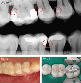 What Is The Ideal Direct Posterior Restoration Paul L
