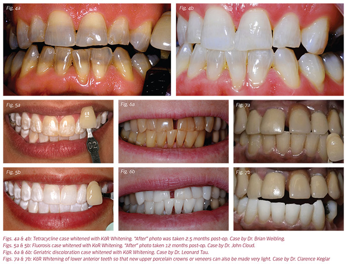 Kor Whitening System By Rod Kurthy Dmd Dentaltown