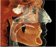 CE Webcast: CBCT in the Treatment of Cranio...