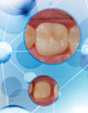 Amanda Seay, DDS  Using Bulk-Fill Composite for a Core Build-up Under a Lithium-Disilicate  Crown Restoration
