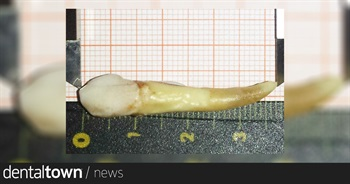 1.46-inch tooth pulled by dentist declared world's longest by Guinness