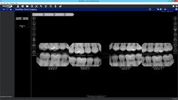 DentiMax Releases Cloud Imaging Software