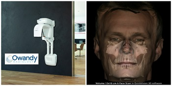 Owandy Radiology's I-Max 3D Receives FDA 510 (k) Clearance