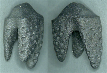 Natural Dental Implants AG Announces 3-D Printed Replicate Tooth at International Dental Show