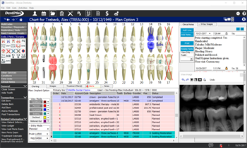 DentiMax Announces Upgrade to its Practice Management Software