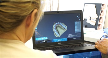 Ivory Digital Denture Announces Global Availability of Digital 'Denture Clinic in a Box'