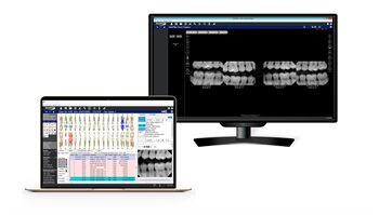 DentiMax Now Offering Complete Cloud Solution