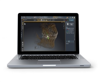 Dentsply Sirona Unveils Sicat Endo 3D Software at CDA Meeting in Anaheim