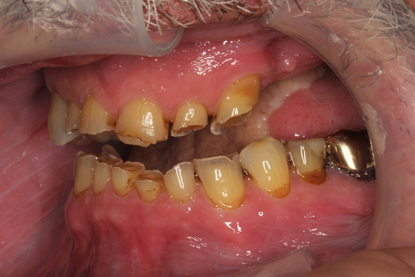 Denture Rehab Retracted Lateral