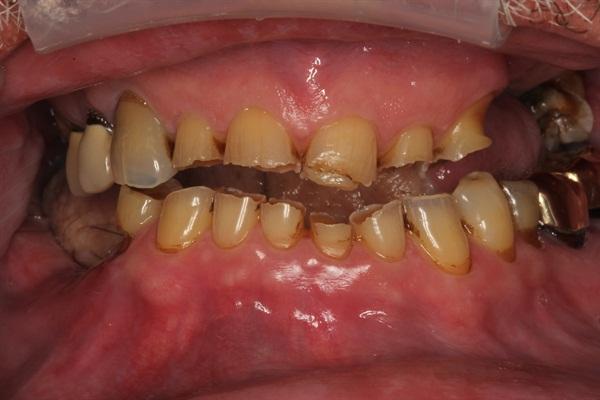Denture Rehab Retracted