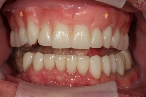 Denture Rehab Temp Denture