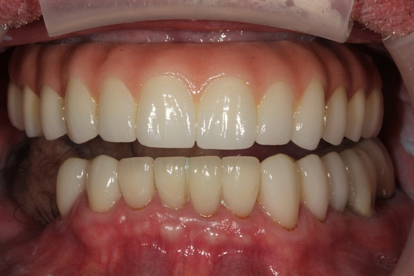 Denture Rehab Final Denture Retracted
