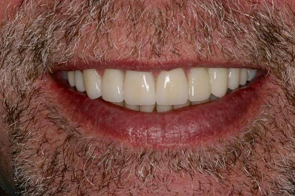 smile post-op