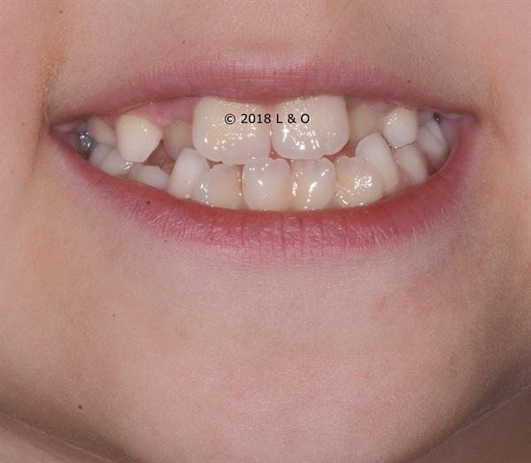Talking About Pediatric Orthodontics