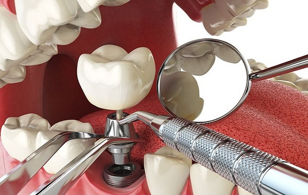How to Prepare Yourself for Dental Implant Surgery
