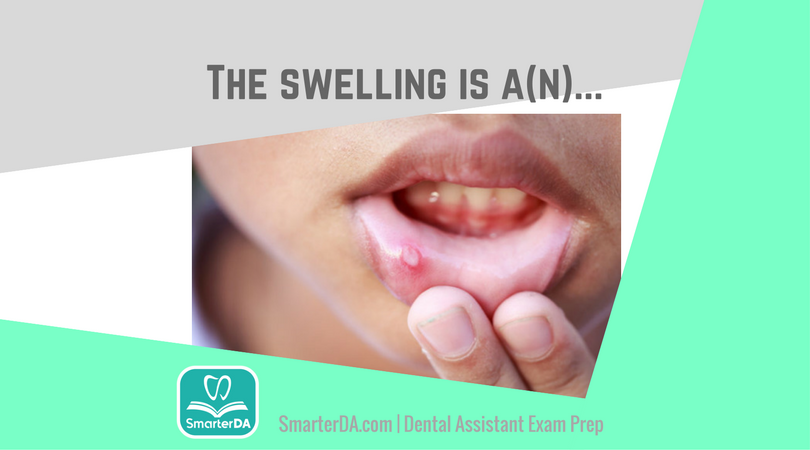 Dental Assisting Boards Prep Review, SmarterDA
